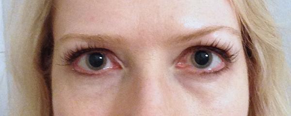 pupillvidgande droppar biverkningar