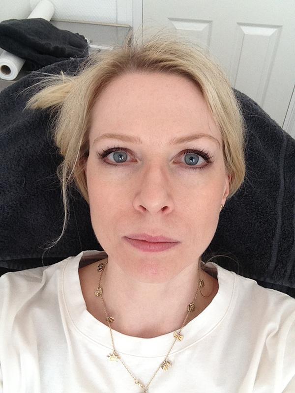 reddit ledsagare ansiktsbehandling i Malmö