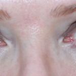 Xlash – ögonfransserumet som gör mina fransar långa